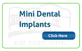 Mini-Dental-Implants